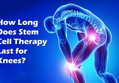 Could Stem Cell Therapy Be An Alternative Treatment For